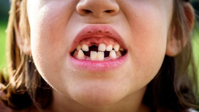 歯がボロボロになる夢