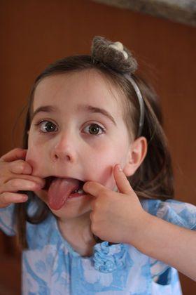 舌を出す癖